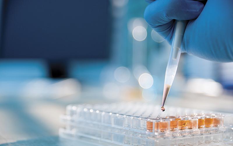 In Vitro Diagnostic (IVD) tests